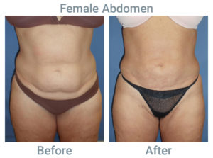 Female Abdomen Leann after before front abd thighs