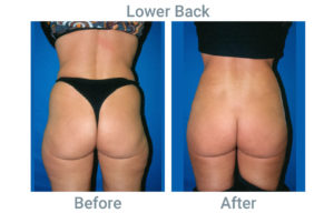 Lower Back before after