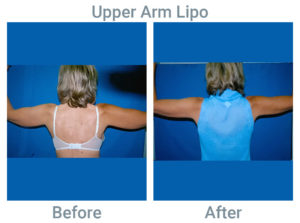 Upper Arm Lipo before after
