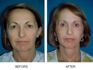 facelift before after @ Dr. Barnes
