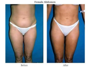 female abdomen before after