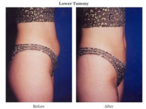 lower tummy before after