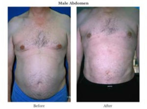male abdomen before after