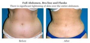smart lipo abdomen bra flanks