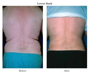 smart lipo lower back