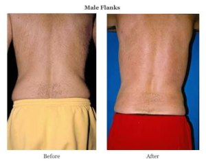 smart lipo male flanks