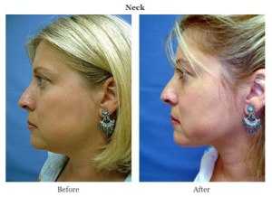 smart lipo female neck before after