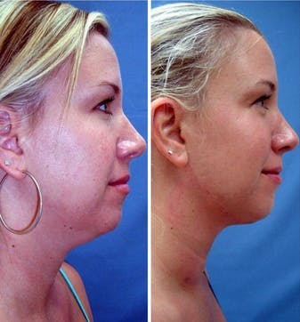 neck lift younger